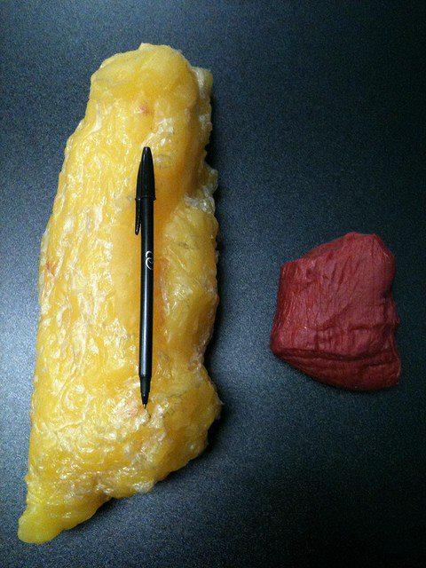 Kilo de grasa vs kilo de músculo