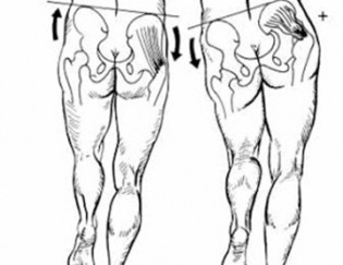 Hip-issues-in-runners-from-lack-of-stabilty_thumb-315x243
